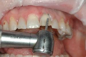 FIGURE 3: Tooth #9 was prepared for the veneer restoration.