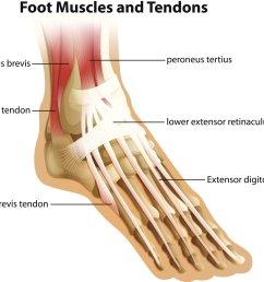 achilles tendonitis anatomy [ 1946 x 1540 Pixel ]