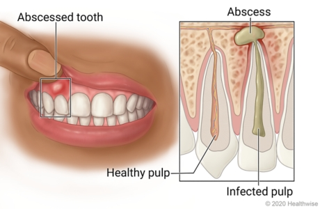 Mouth with abscessed tooth and pocket of pus in gums near it, with inside detail of tooth with healthy pulp and abscessed tooth with infected pulp