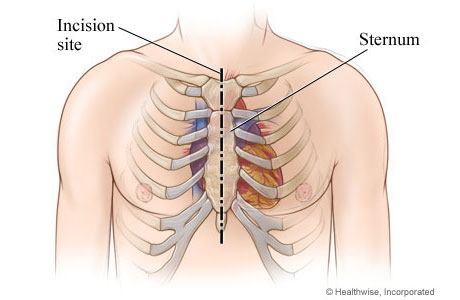 Chest incision site down the middle of the sternum from top to bottom of sternum.