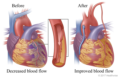 Decreased blood flow caused by narrowed or blocked artery before surgery and improved blood flow after surgery