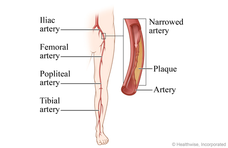 Peripheral arteries of the leg, with detail of the iliac artery narrowed by plaque