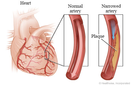 Normal coronary artery and artery narrowed by plaque