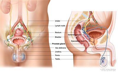 Anatomy of the male reproductive and urinary systems; drawing shows front and side views of ureters, lymph nodes, rectum, bladder, prostate gland, vas deferens, penis, testicles, urethra, seminal vesicle, and ejaculatory duct.