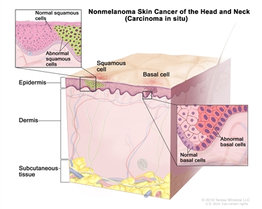 Nonmelanoma skin cancer of the head and neck (carcinoma in situ); drawing shows abnormal squamous cells and basal cells in the epidermis. Also shown are the dermis and the subcutaneous tissue below the dermis. There are two insets: the inset on the left shows a close up of normal and abnormal squamous cells; the inset on the right shows a close up of normal and abnormal basal cells.