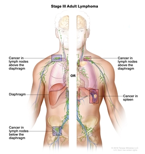 Stage III adult lymphoma; drawing shows the right and left sides of the body. The right side of the body shows cancer in a group of lymph nodes above the diaphragm and below the diaphragm. The left side of the body shows cancer in a group of lymph nodes above the diaphragm and cancer in the spleen.
