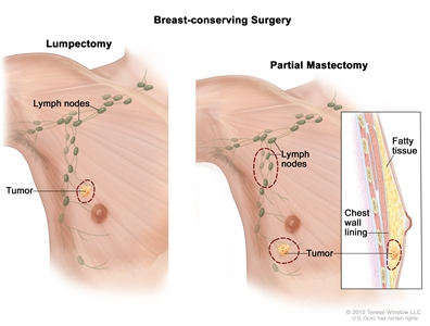 Breast-conserving surgery; drawing shows removal of the tumor and axillary lymph nodes.