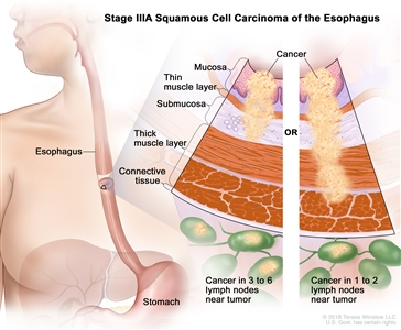 Stage IIIA squamous cell carcinoma of the esophagus; drawing shows the esophagus and stomach. A two-panel inset shows the layers of the esophagus wall: the mucosa layer, thin muscle layer, submucosa layer, thick muscle layer, and connective tissue layer. The left panel shows cancer in the mucosa layer, thin muscle layer, and submucosa layer and in 3 lymph nodes near the tumor. The right panel shows cancer in the mucosa layer, thin muscle layer, submucosa layer, and thick muscle layer and in 1 lymph node near the tumor.