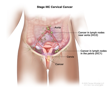 Stage IIIC cervical cancer; drawing shows stage IIIC1 cancer that has spread from the cervix to lymph nodes in the pelvis and stage IIIC2 cancer that has spread from the cervix to lymph nodes near the aorta.