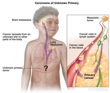 Carcinoma of unknown primary; drawing shows a primary tumor that has spread from an unknown site to other parts of the body (the lung and the brain). An inset shows cancer cells spreading from the primary cancer, through the blood and lymph systems, to another part of the body where a metastatic tumor has formed.
