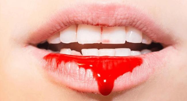 kan tukurme nedenleri - Saliva Blood Comes?