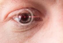 retina szem szemüveg