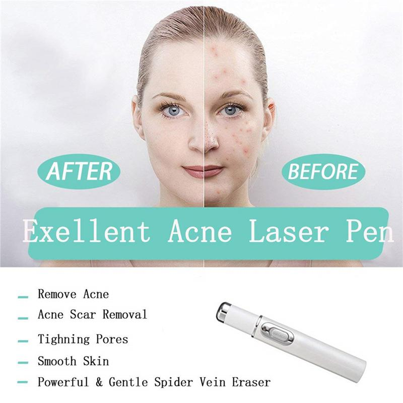 Heath-Blue-Light-Therapy-Varicose-Veins-Treatment-Laser-Pen-Soft-Scar-Wrinkle-Removal-Treatment-Acne-Laser (3)