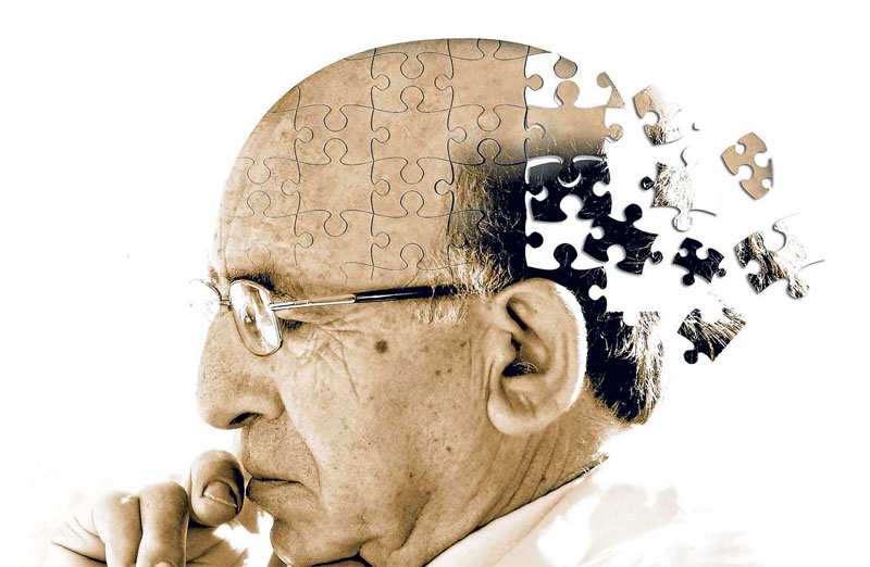 Is There a Cure for Alzheimers?