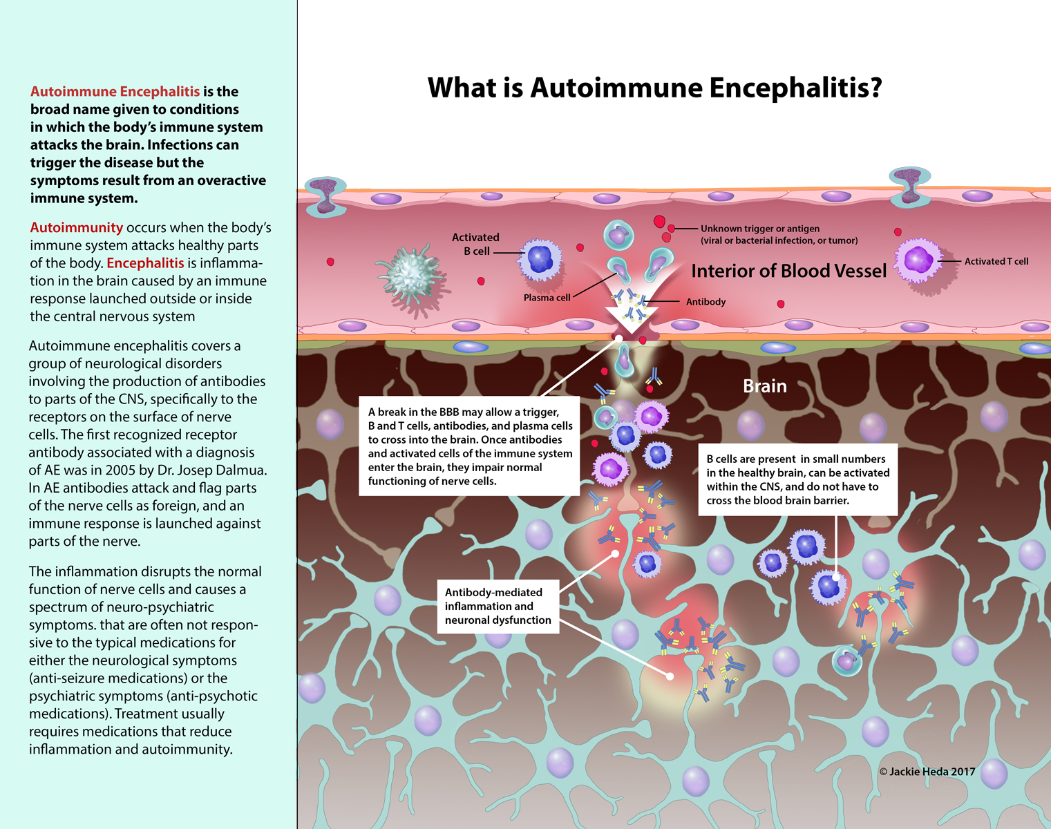 What Is Autoimmune Encephalitis?