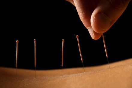 Acupuncture & Holistic Therapies