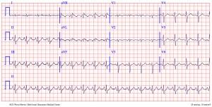 Le - CCU EKG