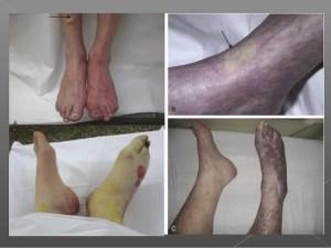 acute-limb-ischemia-3-638