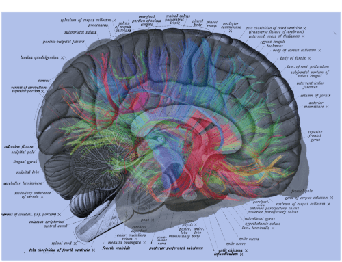 small resolution of human brain labels overlay with weeden mri