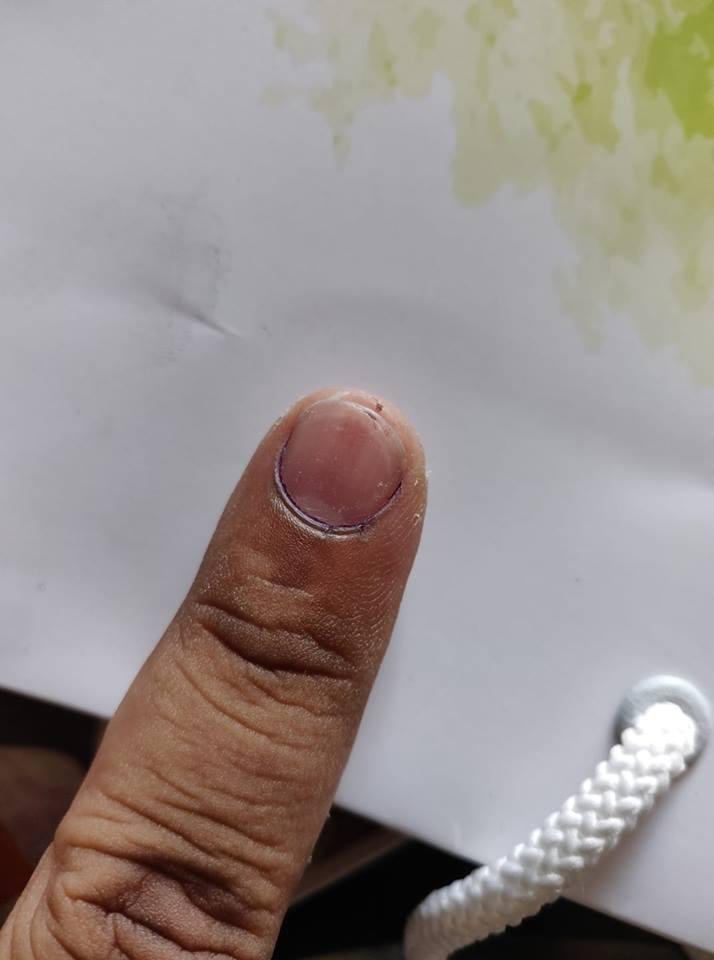 पुण्यात मतदानानंतरची शाई 'गायब' होण्याचा  धक्कादायक प्रकार उघड