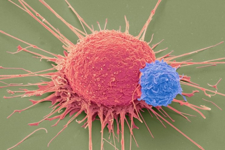 T_lymphocyte_and_cancer_cell