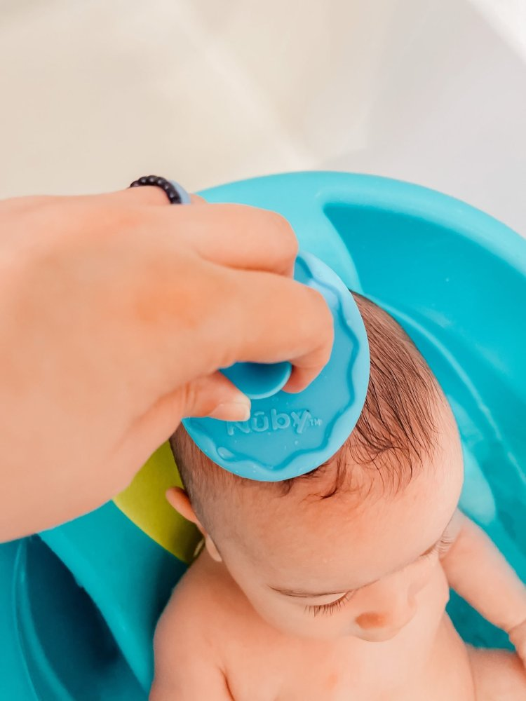 Cradle Cap in babies: How to remove it easy in 2 steps