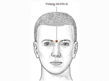 Yintang - the most effective acupuncture point   Health ...