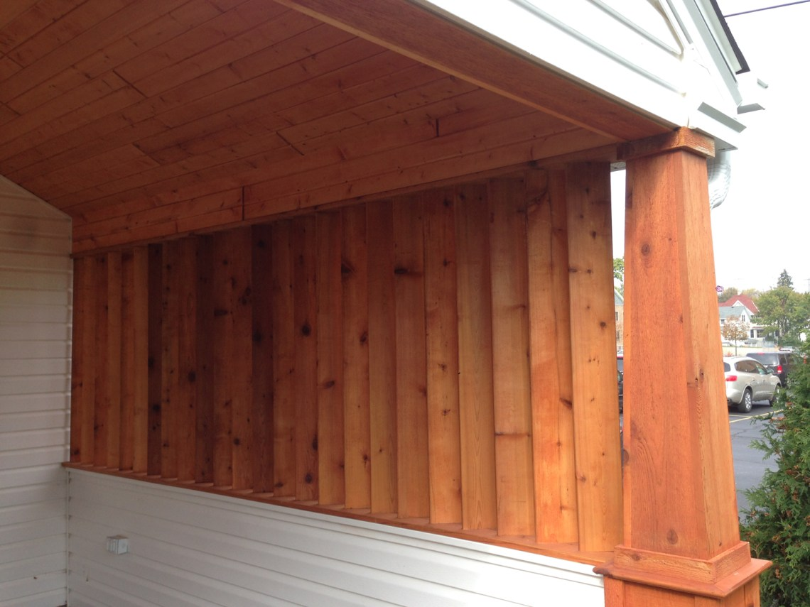 Custom Built Carport | James Allen Builders | Wauwatosa, WI
