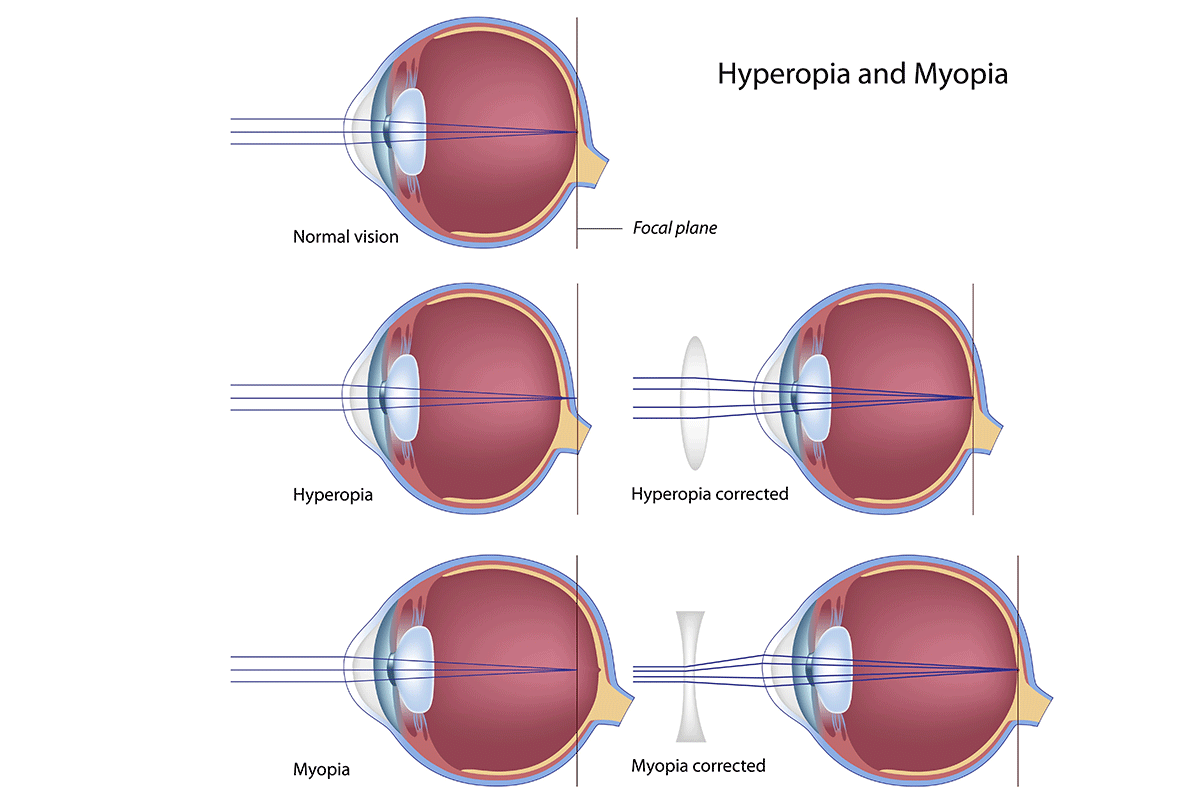 hight resolution of hyperopia and myopia visual aide