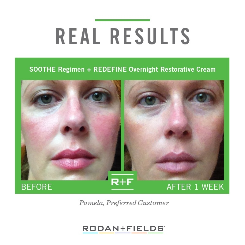 Rodan + Fields SOOTHE