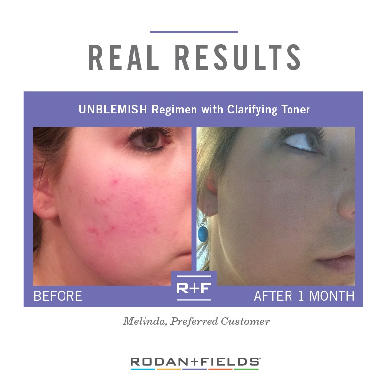 Rodan + Fields Unblemish Before + After
