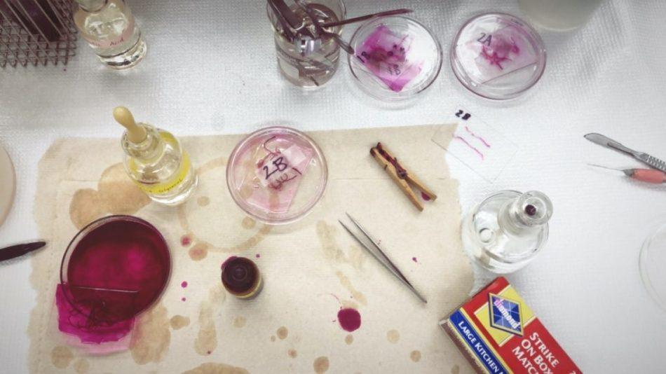 Table de laboratoire montrant le colorant utilisé pour teindre les échantillons de racines prélevés sur le terrain.