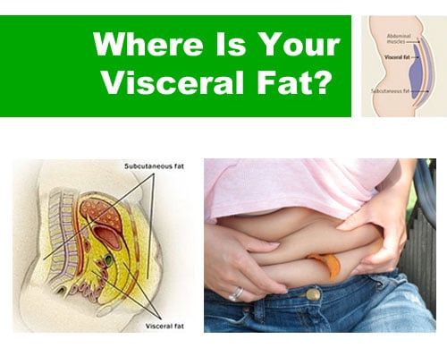 Where Is Your Visceral Fat?