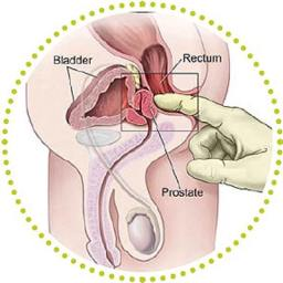 Digital Rectal Exam for Prostate