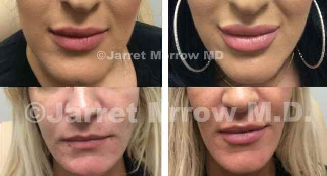 lip fillers before and after Edmonton