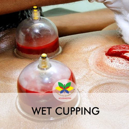 WET CUPPING
