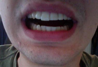 Mouth narrowly open
