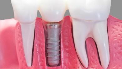 Photo of 5 أسباب قد تؤدي لسقوط أسنانك في عمر مبكّر