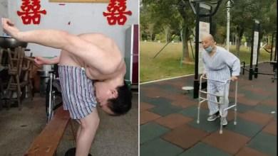 شاهد..في الصين«الرجل المطوي» يستعيد استقامته بعد 28 عاماً