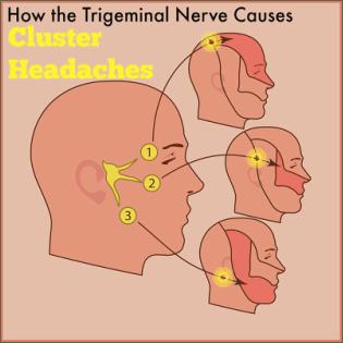 Trigemini-Autonomic cephalgia
