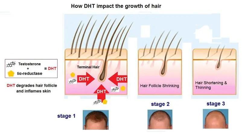 hair loss DHT