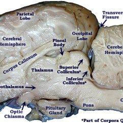 Brain Diagram Pons Wiring For Chevy Truck And Trailer Sheep Dissection Lab Companion