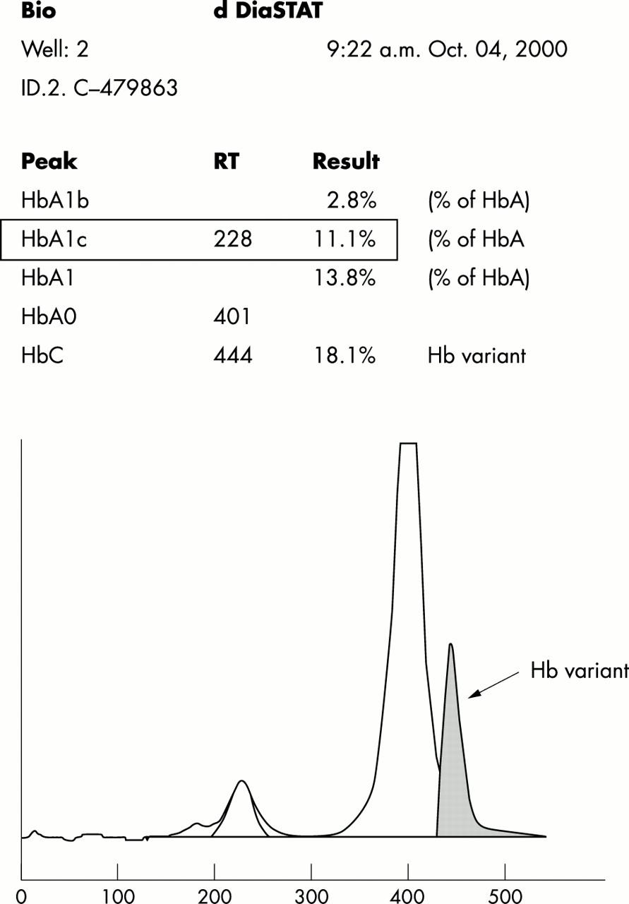 Hb Q-India: an uncommon variant diagnosed in three Punjabi