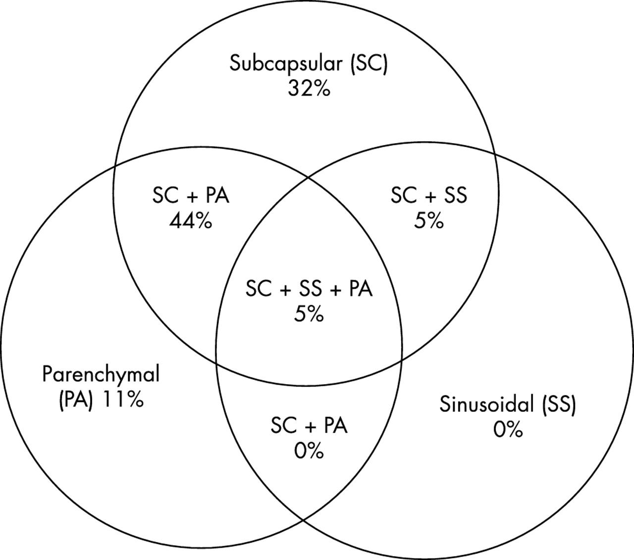 Histopathological Patterns Of Melanoma Metastases In