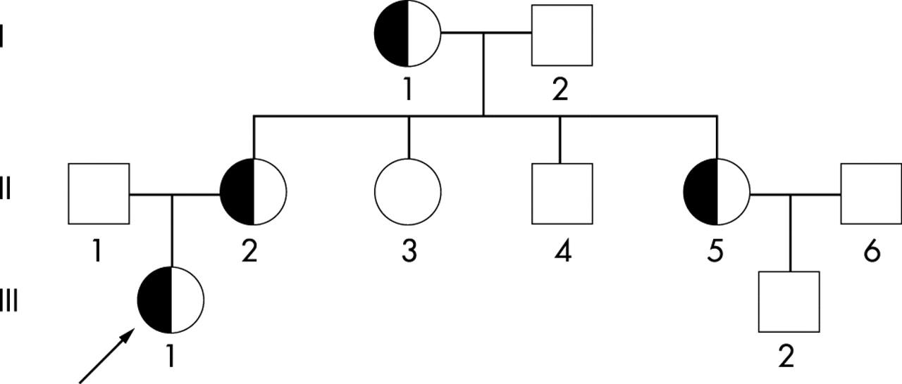 α0 Thalassaemia as a result of a novel 11.1 kb deletion