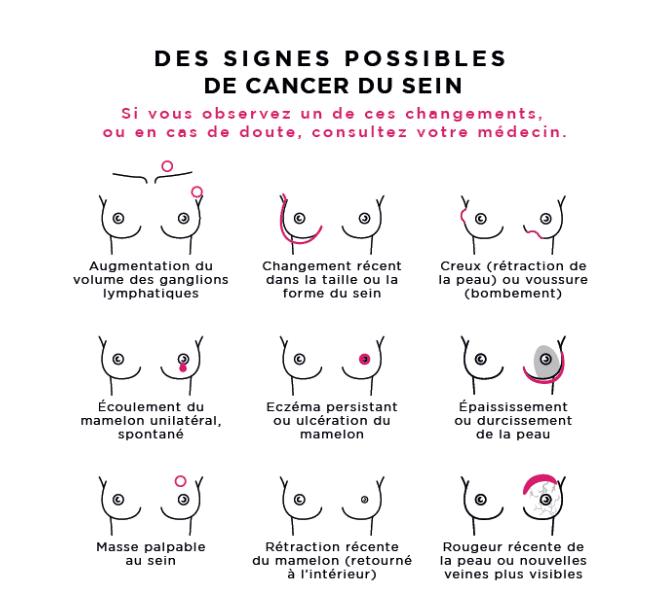 Les signes possible de cancer du sein à repérer lors de l'auto-examen des seins