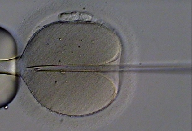 micorphoto of needle injecting egg with a spermatozoa]