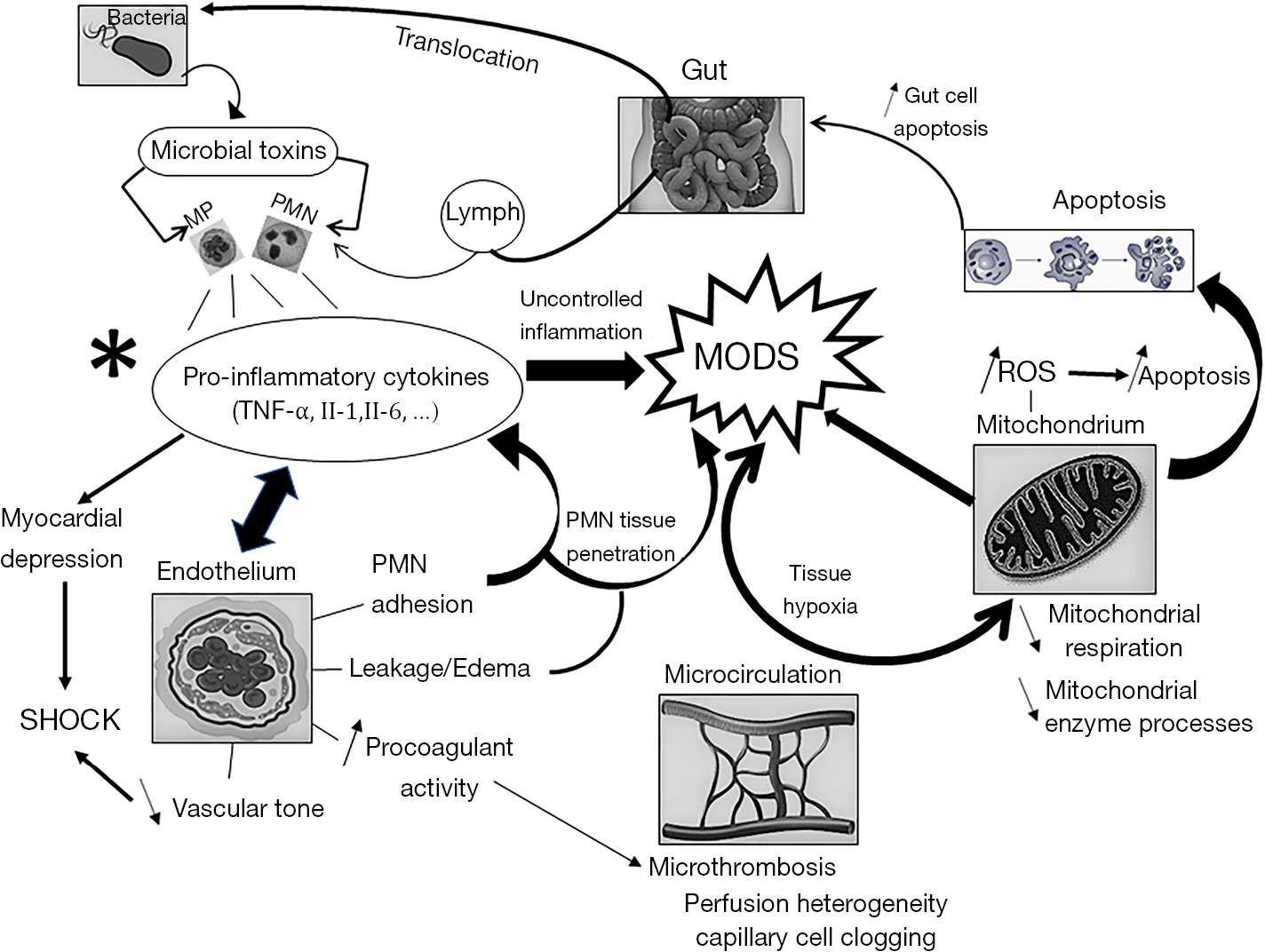 Sepsis-induced multi-organ dysfunction syndrome—a