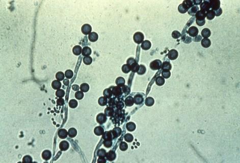 Candida-albicans