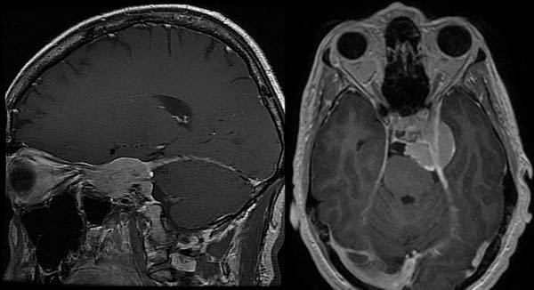 MRI from Meningioma